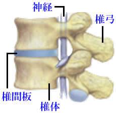 椎間板ヘルニアの症状01
