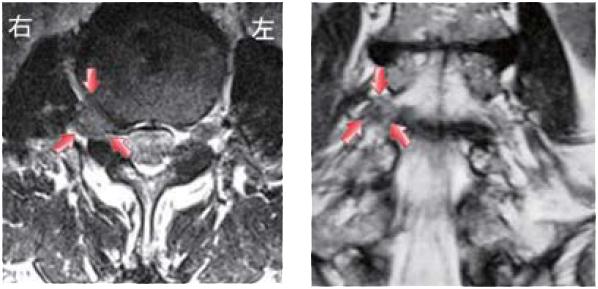 超外側型椎間板ヘルニア