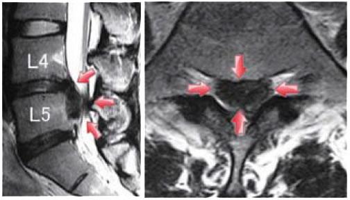 中心型椎間板ヘルニア