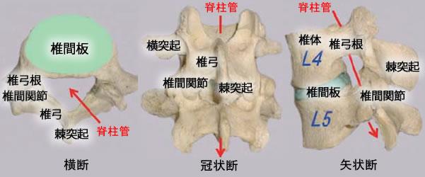 腰部脊柱管狭窄症の特徴と症状01