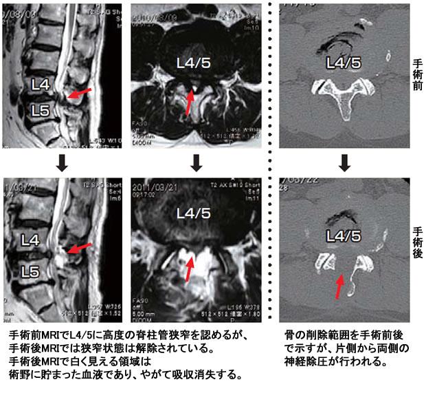 腰部脊柱管狭窄症の手術前後