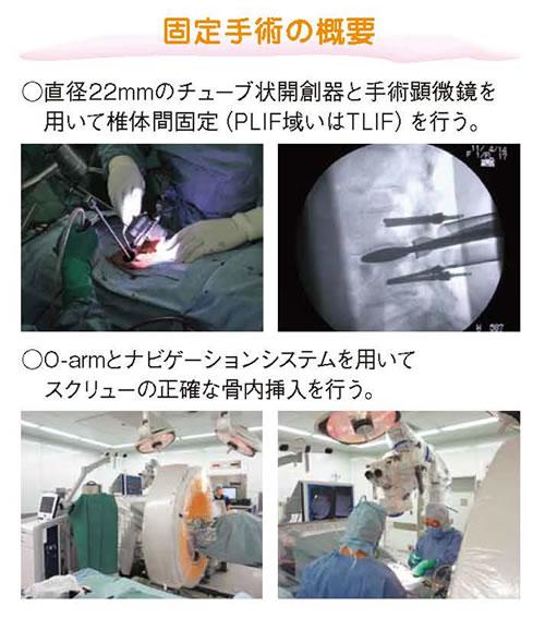 腰椎すべり症に対するmini-open固定術02