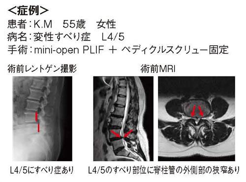 腰椎すべり症に対するmini-open固定術03