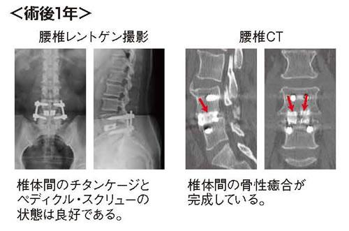 腰椎すべり症に対するmini-open固定術04