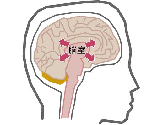 正常圧水頭症01