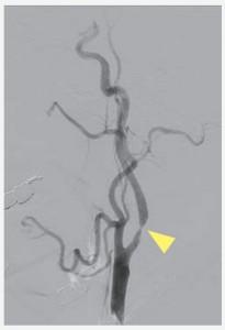 CAS(経皮的頚動脈ステント留置術)イメージ03