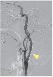 CAS(経皮的頚動脈ステント留置術)イメージ05
